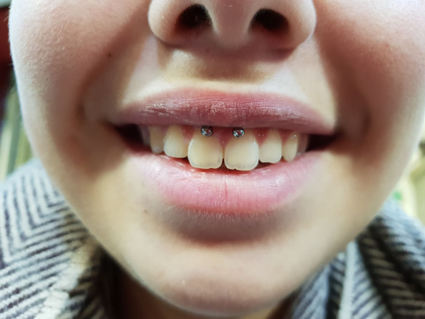Lip frenulum piercing